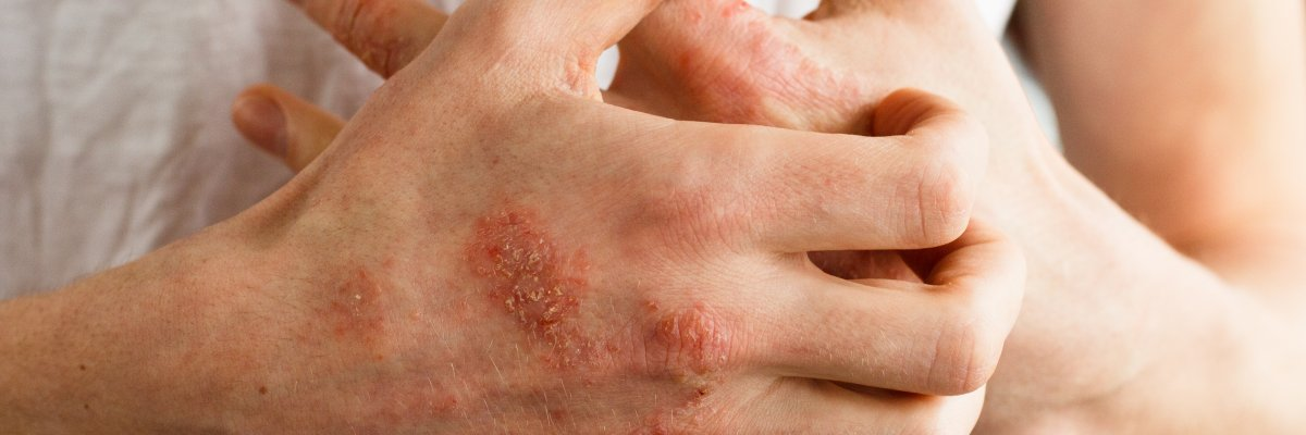 vörös pikkelyes foltok a kéz bőrén