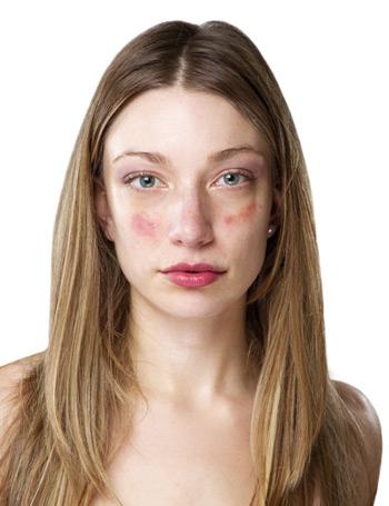 bőrbetegségek az arcon, vörös foltok és viszketés)