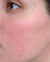 a bőr alatt az arcon vörös foltok)