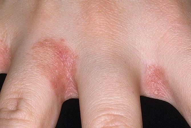 a kéz ujjai között vörös folt viszket)