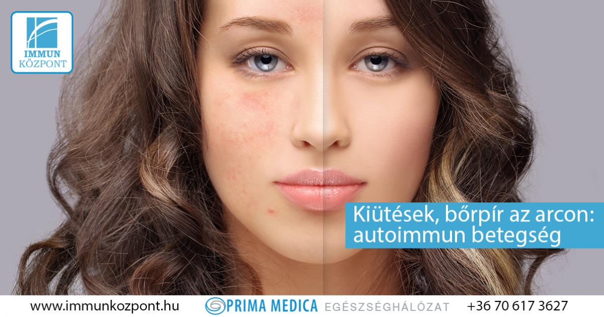 vörös foltok az arcon, a jobb oldalon fáj)