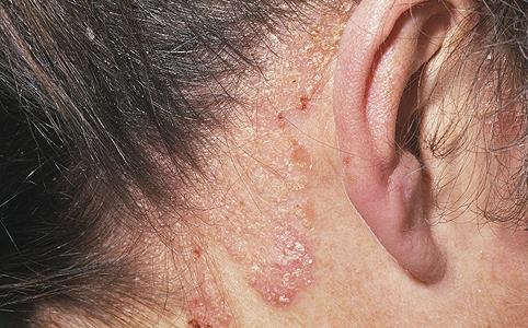 A fejbőr psoriasisának kezelése