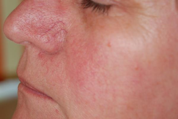 pigmentált vörös folt az arcon)