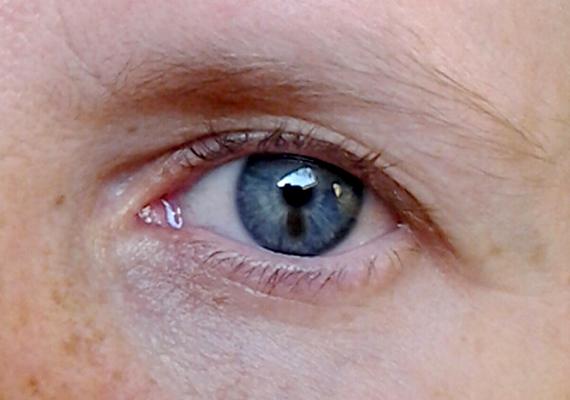 hogyan lehet eltávolítani a pangó vörös foltokat az arcon a leghatkonyabb kezels a pikkelysmr felülvizsgálatához