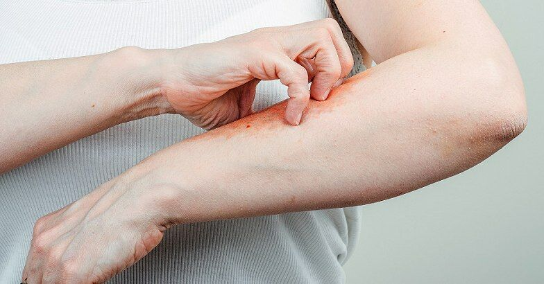 hogyan lehet pikkelysömör gyógyítani a kezeken otthon)
