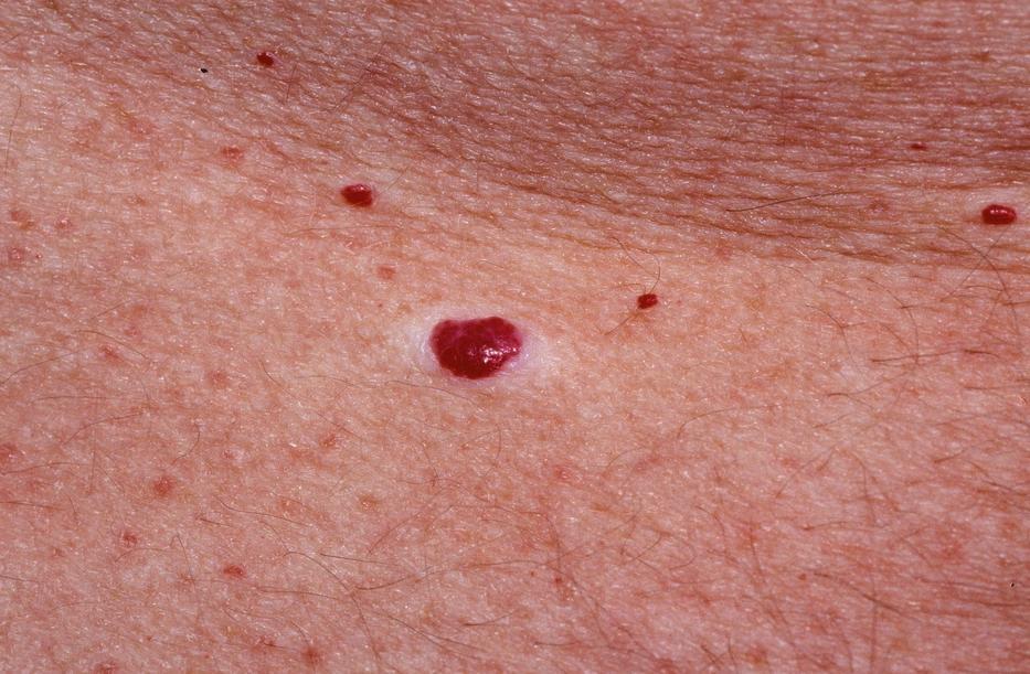 Ha ezt látja, az Lyme-kór lehet