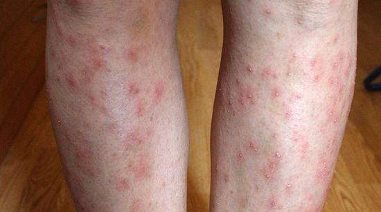 vörös foltok a lábakon, miután a viszketés fáj és megduzzad