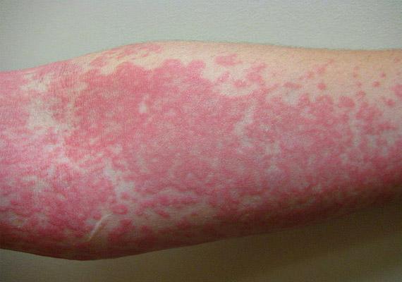 gomba a testen vörös foltok kezelése bőr vörös foltokkal a VSD-nél