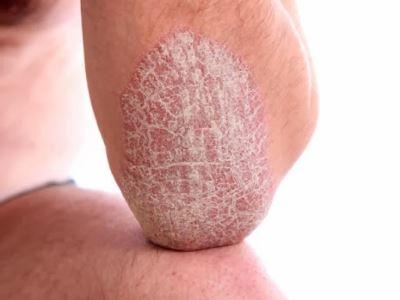 guttate pikkelysömör hatékony kezelse vörös folt a karon apró pattanásokkal
