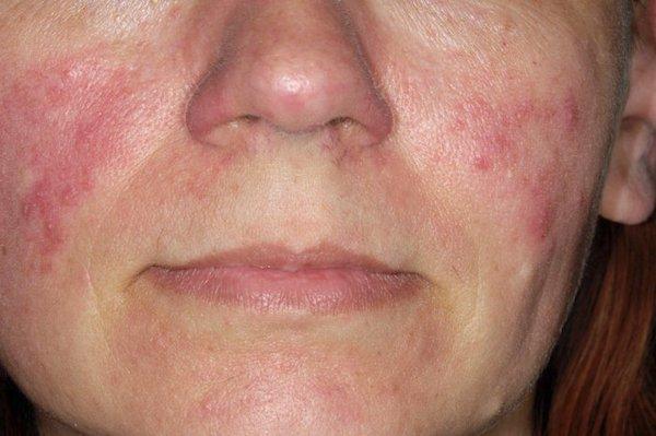 hámló bőr az arcon és vörös foltok vörös foltok az arcon a szőrtelenítés után