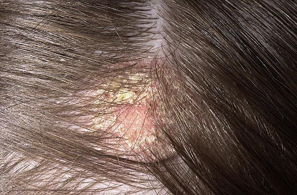 Vörös foltok a fejbőrön