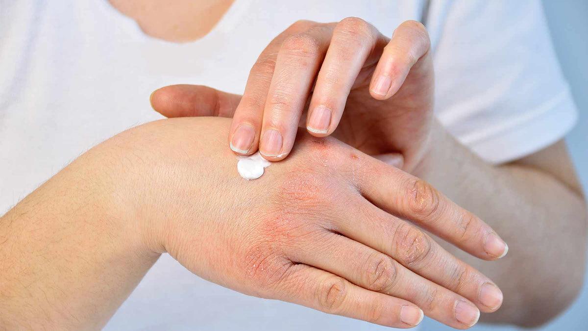 a kezén piros folt és pecsét hogyan lehet pikkelysömör gyógyítani a kezeken otthon