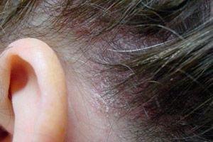 Hogyan és milyen betegségek segítenek az orvosi kénben?
