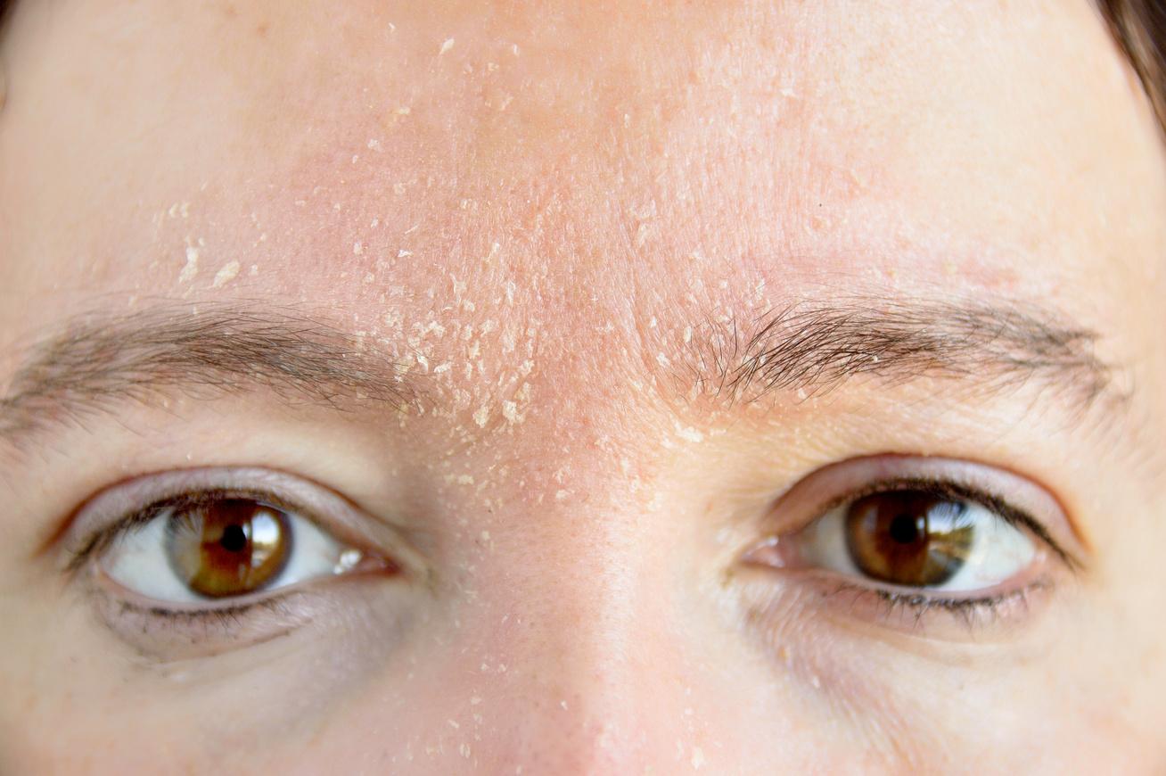 hogyan lehet eltávolítani a fokozott hámlást pikkelysömörben népi gyógymódok a pikkelysömör kezelésére a fejben
