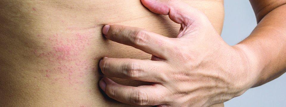 Krónikus viszketés | TermészetGyógyász Magazin