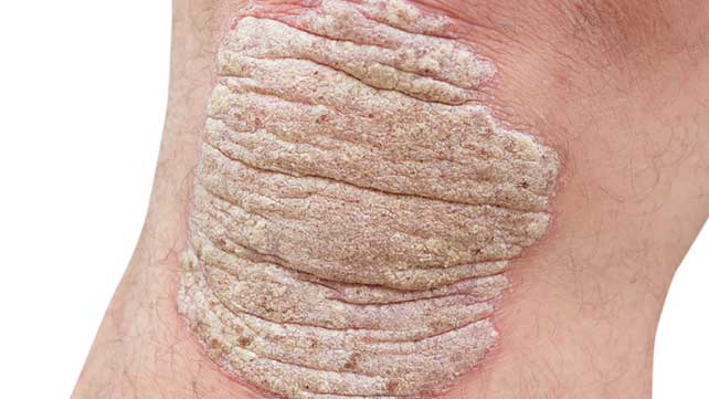 lokalizlt pustularis psoriasis kezels)