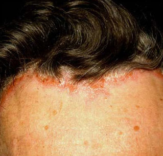 hatékony gyógymód a fején lévő pikkelysömörre vörös foltok mentek keresztül a testen és viszketés kezelés