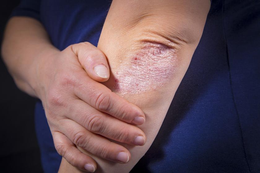 sürgősen kezelje a pikkelysömör vörös foltok a lábán a térd alatt