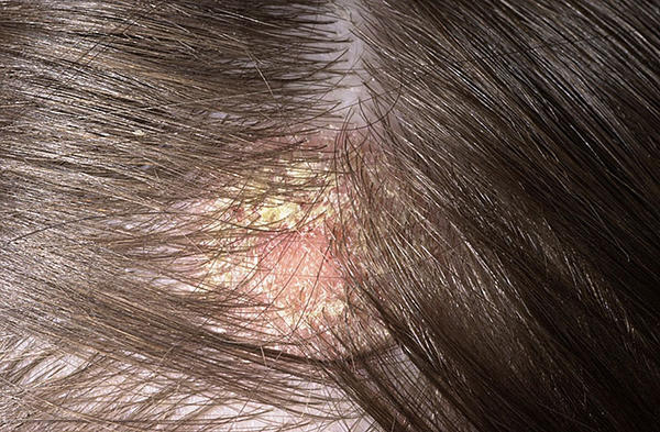 súlyos fejbőr viszketés és vörös foltok)