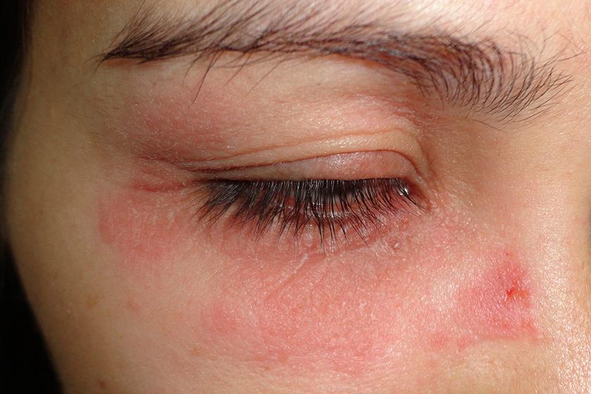 száraz vörös folt a szem alatt viszket
