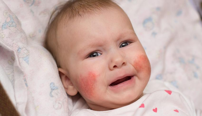 száraz vörös foltok az arcon és a nyakon)