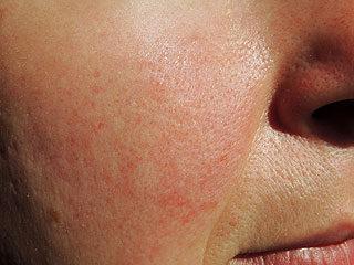 vörös folt jelenik meg az arcon és növekszik)