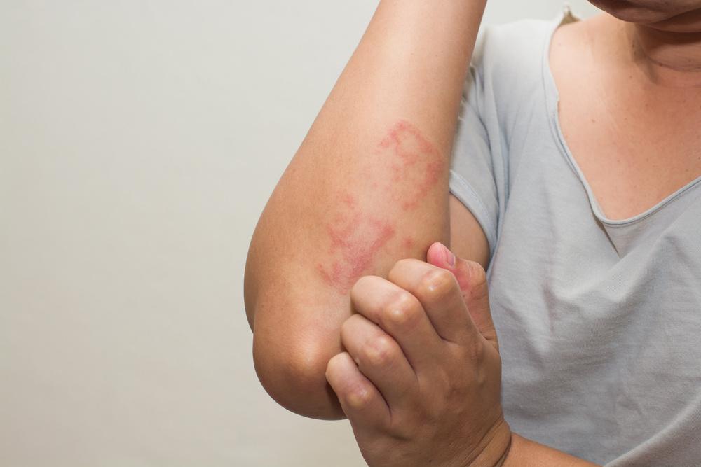 vörös foltok a bőrön stressz alatt pikkelysömör minden kezelése az ókortól a modernig