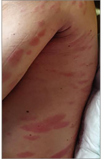 vörös foltok jelentek meg a férfiak lábán