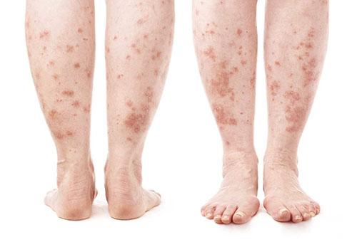 vörös foltok jelentek meg a lábak bőrén