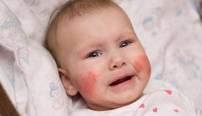 vörös foltok száradása az arcon)