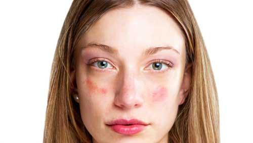 vörös foltok az arcbőrön hámló