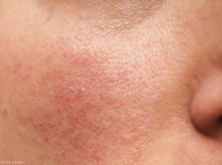 a fürdés után miért vannak vörös foltok az arcon