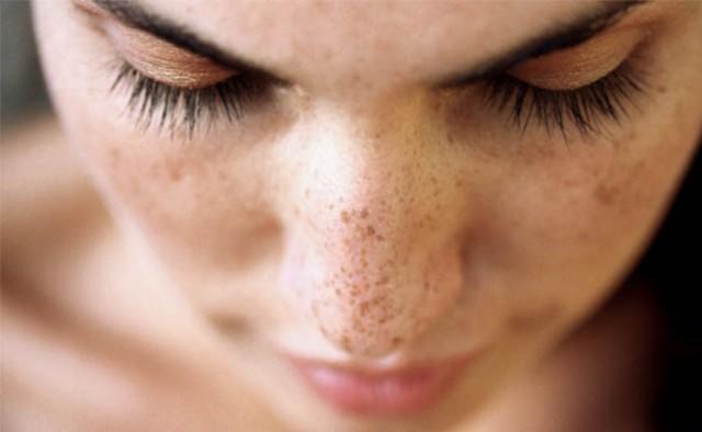 Bőrelszíneződések | Sziluett Plasztika LézerCentrum