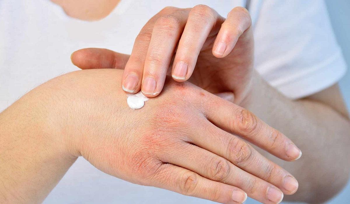 kiütések a karokon és a lábakon vörös foltok formájában aveeno para eczema