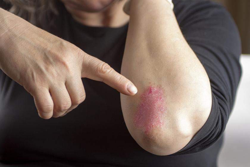 pikkelysmr kezels immunolgia