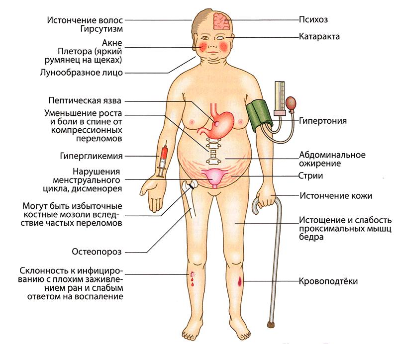A savanyú káposzta számos betegség ellen véd