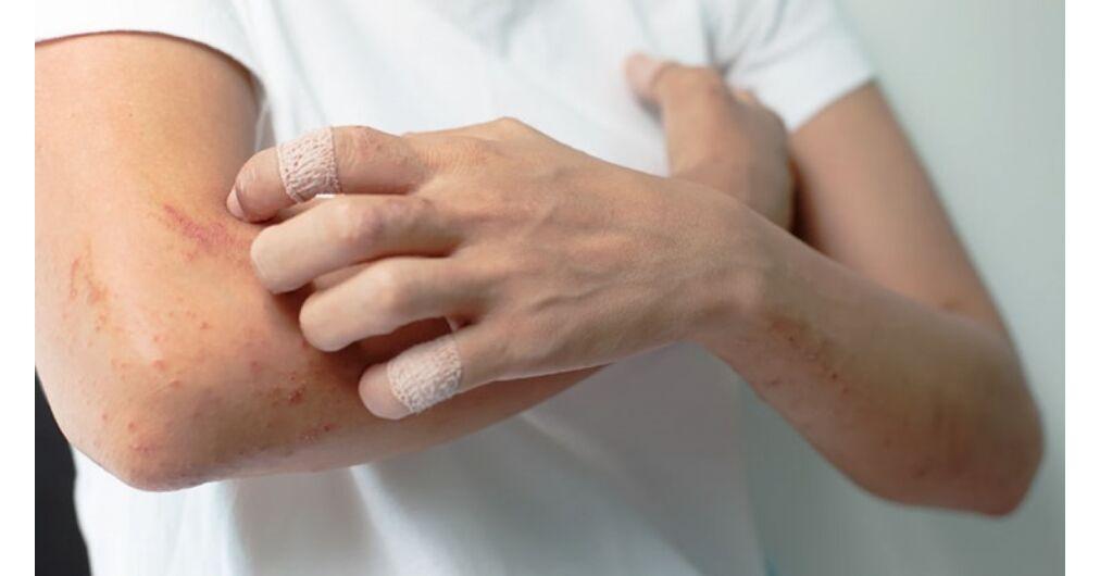 hogyan lehet pikkelysömör gyógyítani a testen örökre