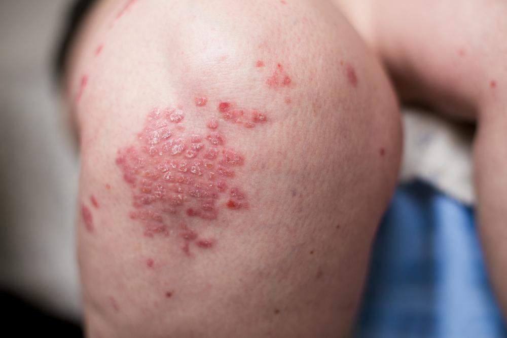 immunitás kezelése pikkelysömörben