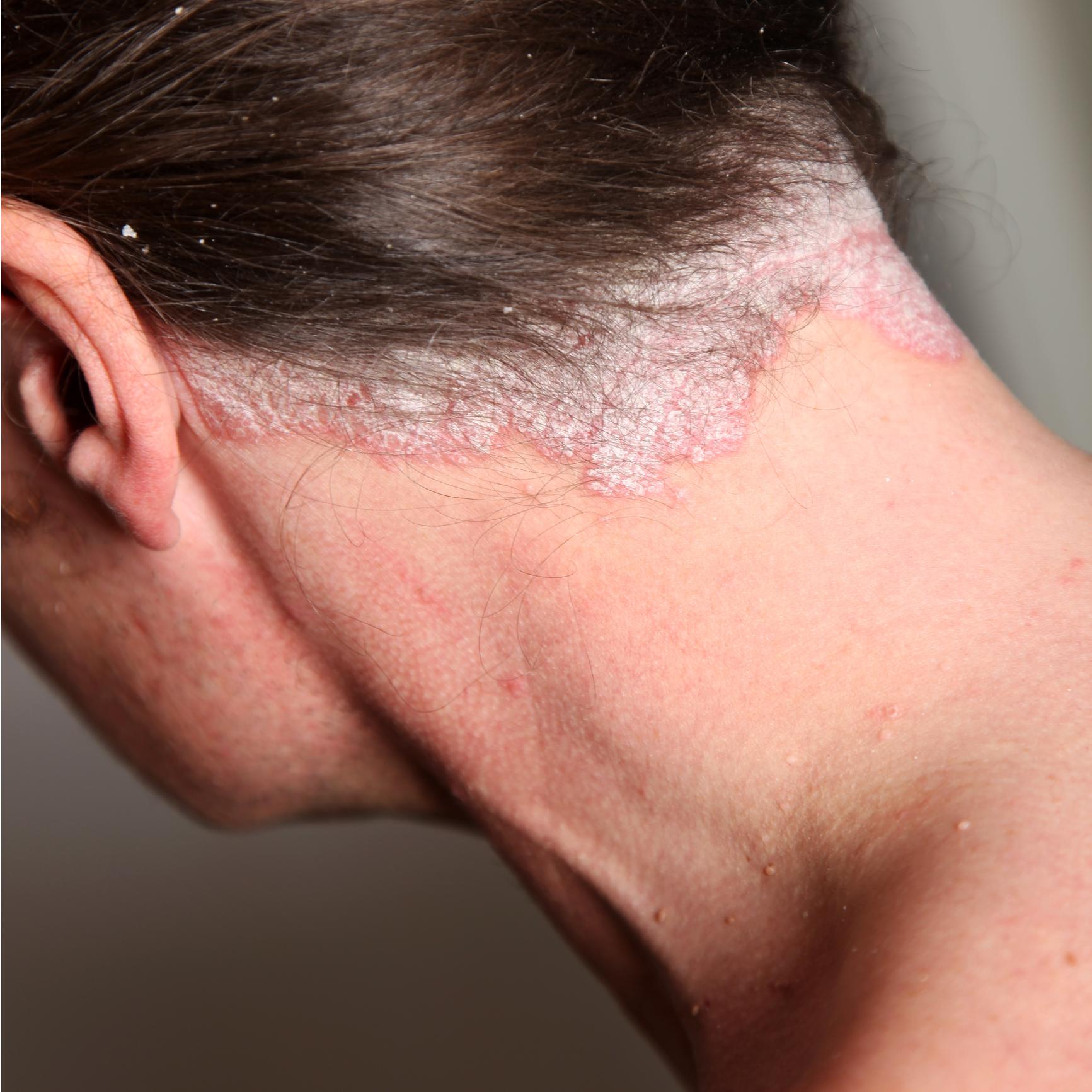 pikkelysömör krém rossmann hogyan lehet eltávolítani a kéregeket a fején a pikkelysömörből