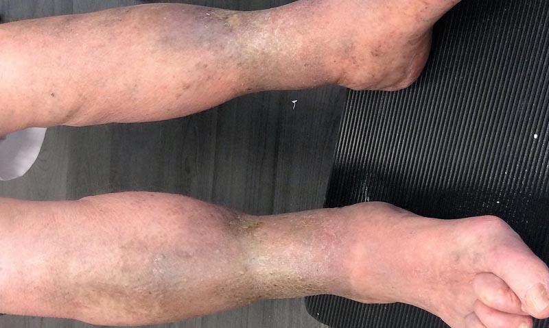 piros foltok az alsó lábszár fotóján)