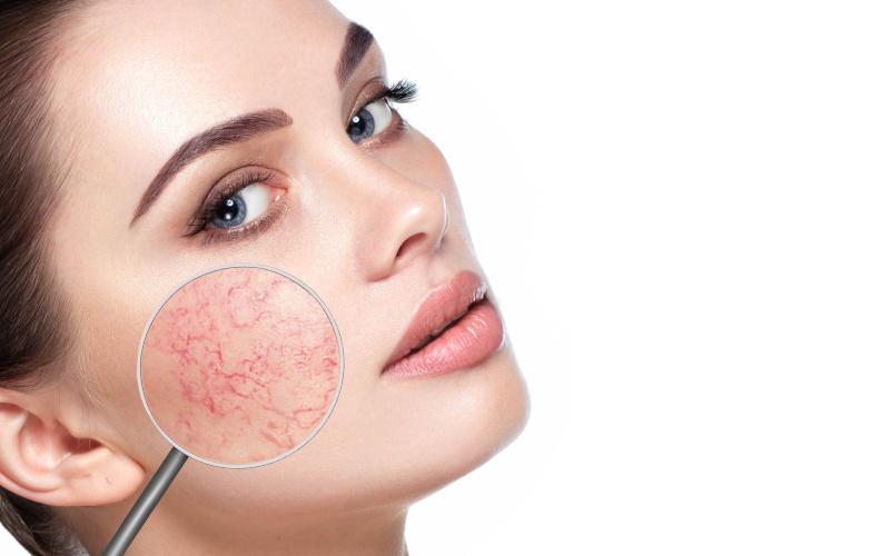 Vörös folt az arcon hámlasztó kezelés, Rosacea, seborrhea kezelése
