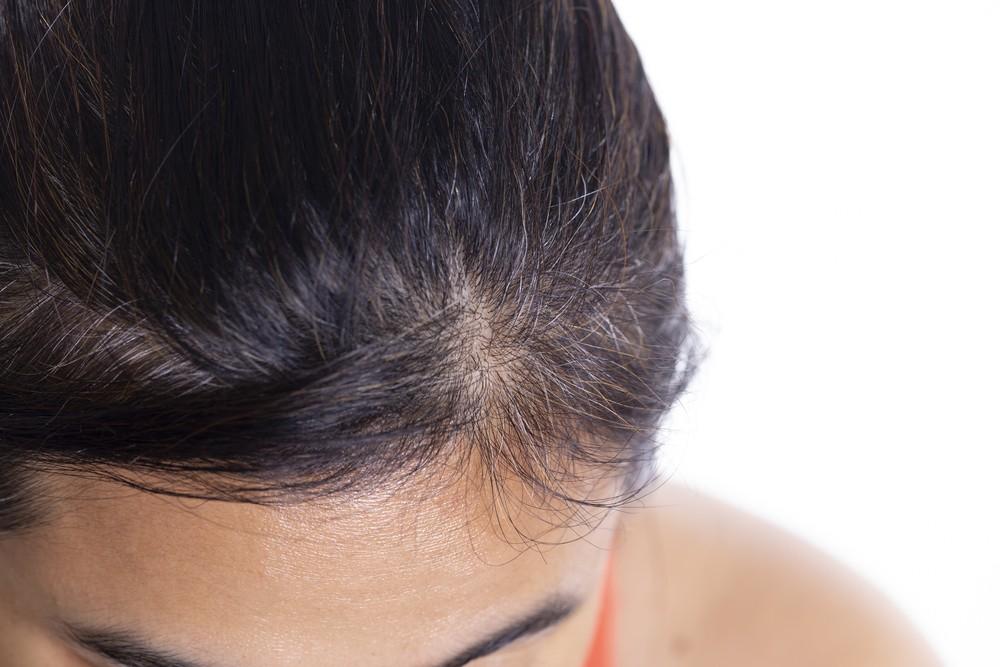 pikkelysömör kezelése a fejen ricinusolajjal