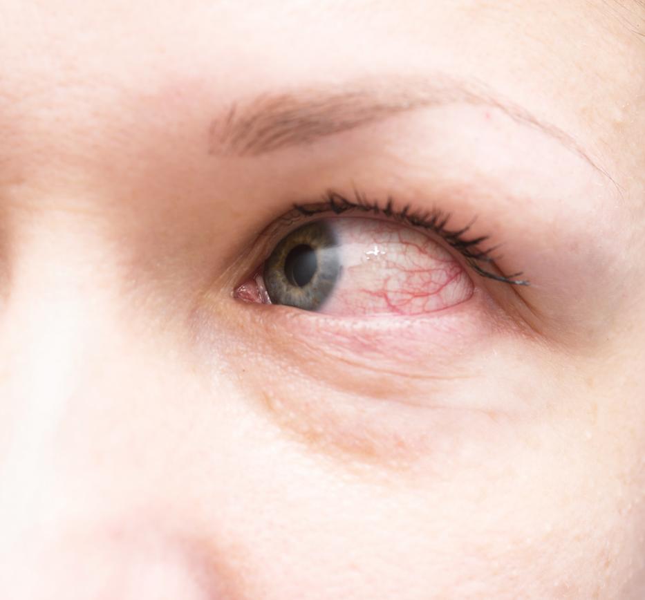 antihelmintikus profilaktika emberek számára