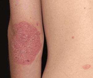 cerave psoriasis cleanser