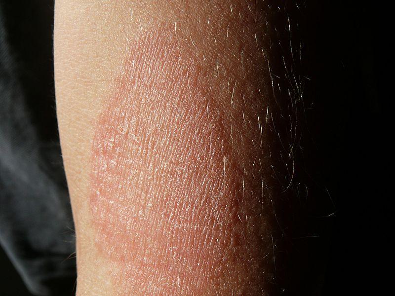 vörös foltok a hónalj alatt és a karok redőin)