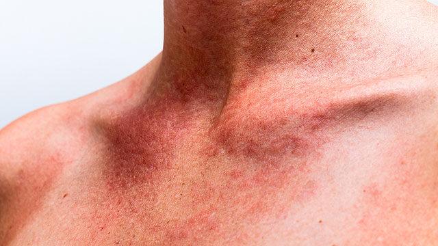 egy vörös folt jelent meg a nyakon lehámozódott)