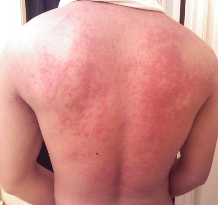 Leégés után a bőr lehámlott és vörös foltok jelentek meg. Infektológus szakorvos, MTA doktora