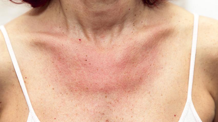 vörös foltok jelentek meg a nyakon)