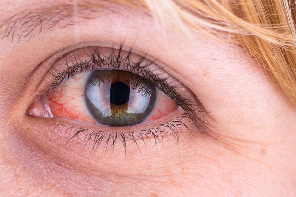 A szem közelében van egy vörös folt és viszket