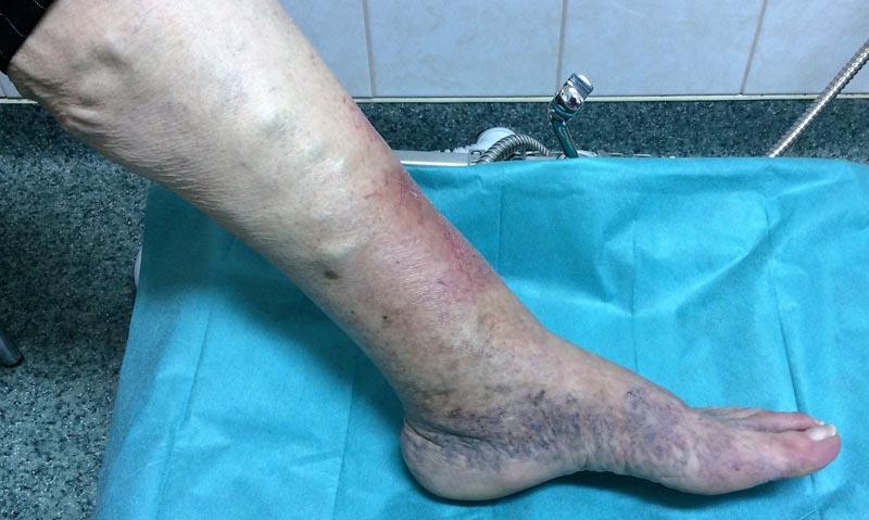 piros feszes folt a lábán)